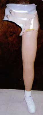 Hip Disarticulation Prosthetic http://www.mohanaorthotics.in/product
